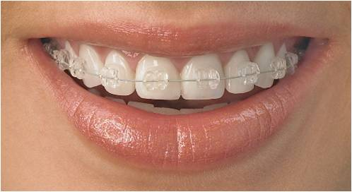 White Wire Ceramic Braces